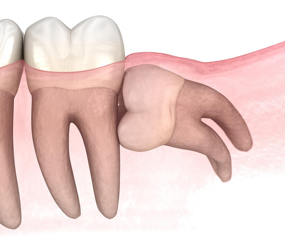 Prise en charge des dents de sagesse par votre dentiste | Cabinet dentaire Kim Tran