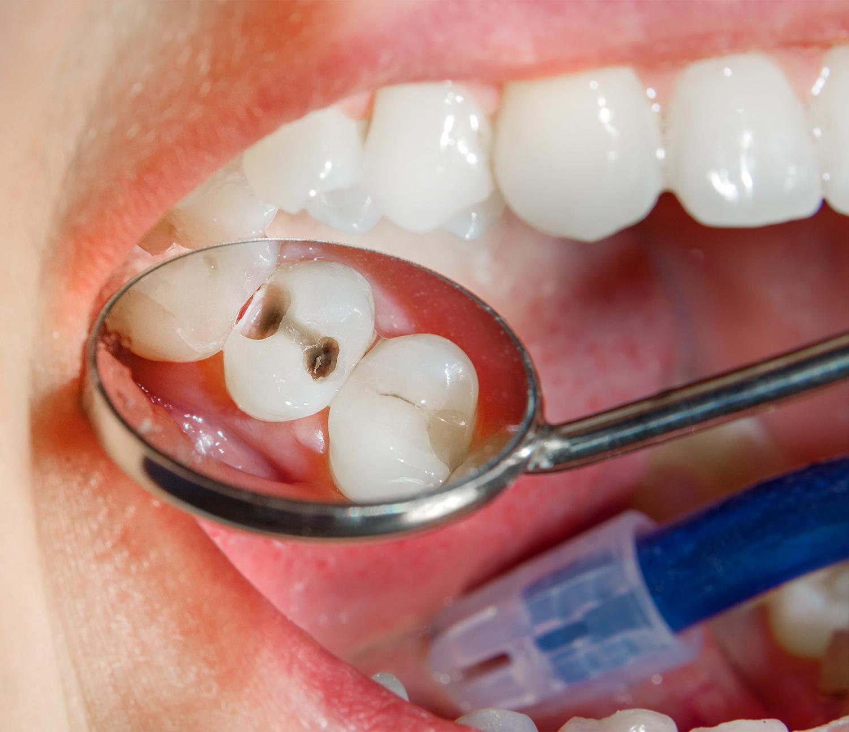 Soigner une carie à Ville-d'Avray   Cabinet dentaire Kim Tran